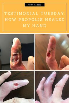 Quintas had the unfortunate experience of being bitten by a poisonous snake. Find out how propolis helped to heal his hand in just 2 weeks Wellness Tips, Health And Wellness, Propolis Benefits, Poisonous Snakes, Healing, Hands, Natural, Health Fitness, Nature