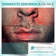 DERMATITE SEBORREICA DA FACE Doença de pele frequente e crônica, são manchas avermelhadas com descamação que aparecem nas áreas ricas em glândulas de sebo (sobrancelhas, base dos cílios, barba, bigode, laterais do nariz). Para tratamento, consulte seu médico dermatologista! #dermatiteseborréica #dermatite #manchaspele #dermatologia #dermatologiaesaúde #dermatology