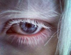 Nastya Zhidkova's eye)).