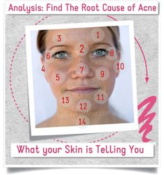 You are what you eat, and what you are is written all over your face. Find out why you always tend to get zits over and over again in the same areas of your face.  #causes_of_acne, #acne, #acne_treatment@Alison M