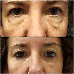 Val used our Lip & Eye Cream on her eyes!! I am LOVING her results!!! Lonestarbodywraps.com #eyes #ageless #finelinesandwrinkles #puffyeyes #results #crazy #loveit #beautiful #lubbock #texas #tiredeyes #amazing #lipandeyecream #itworks #icanhelp #beconfident #confidence #areyouready