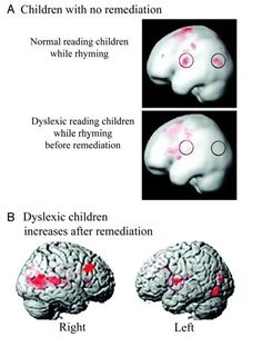 Training the Brain to Hear (Phonological Awareness) in Childhood Dyslexia   Reading Difficulties and Dyslexia   Scoop.it