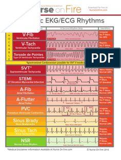 Cardiac Dysrhythmias | Electrocardiography | Cardiovascular System Heart Blood Flow, Cardiac Nursing, Nclex, Word Doc, Medical, Presentation Slides, Words, Pdf