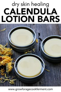 Calendula flowers are highly nourishing for the skin. These calendula lotion bars are easy to make and the perfect natural remedy for dry skin! Dry Skin Remedies, Herbal Remedies, Health Remedies, Natural Remedies, Natural Treatments, Healing Herbs, Natural Healing, Holistic Healing, Natural Life