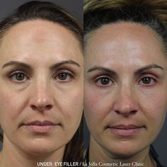 """@lajollalaser shared a photo on Instagram: """"Under-eye Filler hydrates below the eyes and helps fill in any hollowness. Hollowness results from volume loss and under eye filler is a…"""" • May 21, 2021 at 1:06am UTC Under Eye Fillers, Laser Clinics, Eyes, Instagram, Cat Eyes"""