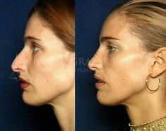 Nose surgery, Newport Beach Rhinoplasty, is designed to improve the size and shape of the nose and/or correct breathing problems. Plastic Surgery Pictures, Facial Cosmetic Surgery, Bulbous Nose, Pretty Nose, Rhinoplasty Before And After, Face Profile, Nose Surgery, Facial Rejuvenation, Board Member