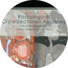 Radiological cross-sectional anatomy: with multidetector CT: thorax, abdomen, and pelvis - DVD-ROM. http://kmelot.biblioteca.udc.es/record=b1425348~S12*gag