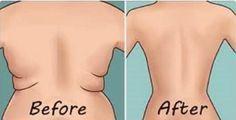 Este xarope caseiro vai derreter o abdome e desinchar todo o corpo em menos de 30 dias - Cura. Este xarope caseiro vai derreter o abdome e desinchar todo o corpo em menos de 30 dias - Cura Pela Natureza, Love Handles, 4 Minute Workout, Side Fat, Back Fat, Lose Weight, Weight Loss, Lose 20 Pounds, Burn Belly Fat, How To Get Rid