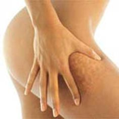 - Get rid of that cellulite! Here's a tried and proven way... -