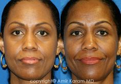Periorbital Fat Transfer and Lower Eyelid Skin Pinch make the eyes appear healthier, less tired, and more youthful. This patient is 6 months post surgery. Plastic And Reconstructive Surgery, Plastic Surgery, La Jolla California, Fat Transfer, 6 Months, Face, Tired, Restoration, Eyes