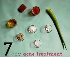 homemade-acne-treatments