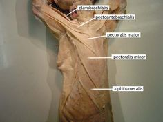 cat muscles   Upper Body: Ventral: Thorax: Superficial