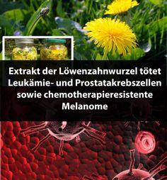 Extrakt der Löwenzahnwurzel tötet Leukämie- und Prostatakrebszellen sowie chemotherapieresistente Melanome | Krass