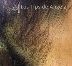 Caída del cabello - Recuperar cabello. http://www.lostipsdeangela.com/2014/11/caida-de-cabello-que-hacer.html