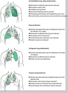 While pneumothorax may be referred to as a collapsed lung, people sometimes use the term 'collapsed lung' to refer to atelectasis. Atelectasis refers to improper amounts of air in the alveoli (air sacs), resulting in a loss of volume in all or part of the lung. This loss of air in the alveoli can be due to obstruction.