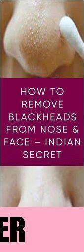 Mitesserentferner Beste natürliche Möglichkeiten um Akne endgültig zu entfern- Remove Blackheads From Nose, Blackhead Remover, How To Remove, Soap, Personal Care, Face, Personal Hygiene, Faces, Soaps