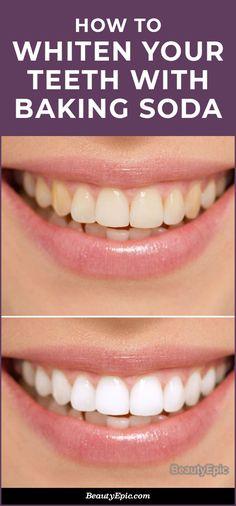 Baking Soda Teeth, Baking Soda Shampoo, Baking Soda Whitening Teeth, Homemade Teeth Whitening, Home Remedy Teeth Whitening, Natural Teeth Whitening, Whitening Kit, Teeth Whiting At Home, Moisturizer For Oily Skin