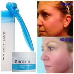 "Fellow Consultant Laura Claborn:  ""This is a little less than 60 days and I cannot be happier with my results. I have been using the Redefine Regimen with the AMP MD Roller. I believe the biggest difference in my skin is the texture. It is smoother, looks fuller and makes me look more rested! Don't forget my best friend the Multi-Function Eye Cream. Bring on the NEXT 60 days! I can't wait! (No Make-up on either picture)""  Are you Ready to Change Your Skin?  Message Me!"