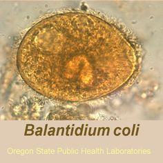 balantidium coli - Buscar con Google