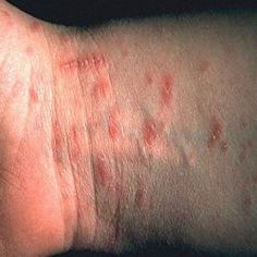 5 Most Effective Scabies Herbal Remedies
