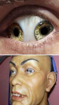 Human Medical Oddity