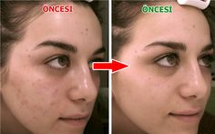 4 Dakikada Yüzdeki Lekeleri Yok Et How we can reduce facial blemishes in 4 minutes. In natural ways, you can solve it with a few ingredients to take care of our skin and end the blemishes. Skin Spots, Spots On Face, Skin Mask, Healthy Skin Care, Homemade Skin Care, Hair And Nails, Facial, Hair Beauty, Good Things