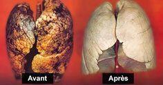 Certaines personnes ont des problèmes pulmonaires même s'ils n'ont jamais allumé une cigarette de leur vie, tandis que d'autres ont fumé pendant 40 ans et leurs poumons fonctionnent parfaitement. Tout ceci dépend de l'organisme de la personne. En outre, nous allons vous présenter quelques conseils sur la façon dont vous pouvez nettoyer vos poumons en trois jours. …