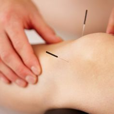 Can Acupuncture Help MS Patients Walk Better?