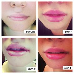 Beautiful result for a lip enhancement; day one slight swelling, day two bruising and by day five STUNNING!! #lips #kiss #pout