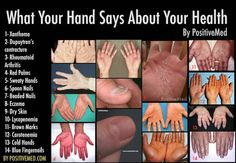 What Your Hand Says About Your Health