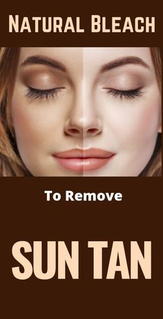 How To Make Natural Bleach At Home To Remove Sun Tan #skin #skincare #skincaretips #beautytips