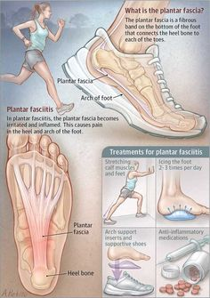 Tagged with the more you know, pain, awareness, support, plantar fasciitis; Shared by Plantar fasciitis What Is Plantar Fasciitis, Plantar Fasciitis Exercises, Plantar Fasciitis Treatment, Human Body Anatomy, Muscle Anatomy, Foot Exercises, Foot Pain Relief, Medical Anatomy, Podiatry