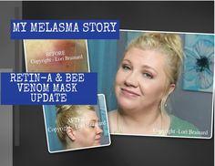 **My Melasma Story - Retin-A & Beenigma Dupe Update**