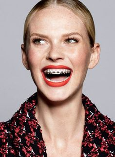 Sports Illustrated swimsuit super model, Anne V sported a bright, braces-bedazzled smile in Vogue, 2013.