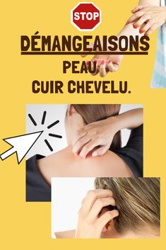Diet And Nutrition, Voici, Health Fitness, Medical, How To Plan, Healthy Recipes, Lifestyle, Being Healthy, Itchy Scalp Remedy