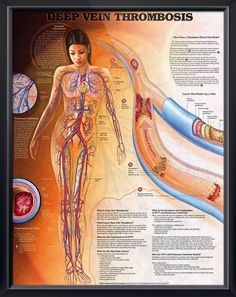 Deep Vein Thrombosis anatomy poster illustrates how a thrombus (blood clot) forms, vascular circulation and pulmonary embolism. Cardiovascular chart for doctors and nurses.