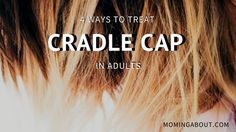 What Causes Cradle Cap In Babies And Adults Cradle Cap