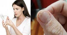 Receita caseira top para combater unhas fracas e queda de cabelo! Fatigue Surrénale, Signs Of Adrenal Fatigue, Healthy Kidneys, Muscle Weakness, Adrenal Glands, Uterine Fibroids, Brittle Nails, Organic Coconut Oil, Hair Loss