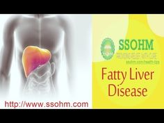 ssohm reviews - Dr R K Aggarwal - Fatty liver natural Treatment
