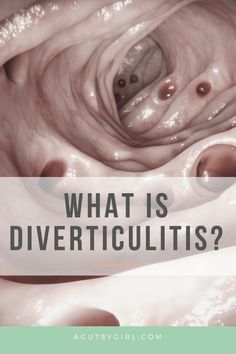 What is Diverticulitis diet diverticulitis guthealth healthyliving Diverticulitis Flare Up, Liquid Diet For Diverticulitis, Diverticulitis Recipes, Diverticulitis Symptoms, Gastritis Diet, Natural Remedies For Diverticulitis, Sigmoid Colon, Easy To Digest Foods, Low Fiber Diet