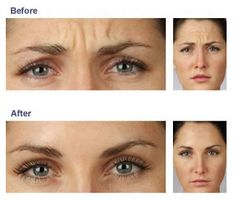 We have been using Cosmetic Botox in Toronto for over 19 years. Improve the appearance of fine lines and wrinkles using Botox and look youthful and refreshed. Botox Fillers, Dermal Fillers, Marie Osmond, Sarah Palin, Botox Before And After, Botox Cosmetic, Facial Aesthetics, Medical Aesthetics, Cellulite Scrub
