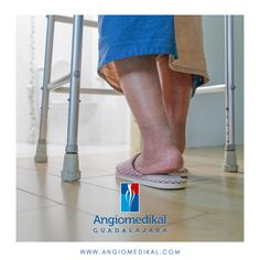 El edema venoso generalmente ocurre en la región del tobillo, pero pude extenderse a la pierna y pie. Puede ser difícil diferenciarlo del #linfedema, el cual, por lo general involucra los dedos. ⠀ Ante cualquier duda, acude con tu #Angiólogo ✅Cuida tu circulación #hazloenmanosdeexpertos⠀ #varices #escleroterapia #insuficienciavenosa #angiomedikal #angiotips #angiologozapopan #dolor #trombosis #varicesgdl #variceszapopan #venasvaricosas #ulceravenosa #flebitis #zapopan #gdl… Edema, Varicose Veins, Fingers, Legs, Emergency Medicine