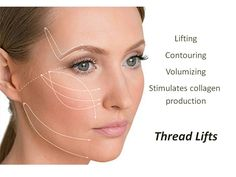 A thread lift is a non-surgical alternative to having a surgical face or neck lift. It uses threads, which are specialized suture material, to lift the skin of the face to a more youthful and favorable position. It uses microfine, non-allergenic threads to lift and re-position sagging, droopy or jowly skin of the brow, face, jaw line and neck.