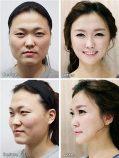 Cosmetic Surgery World. Steps On How To Go About Cosmetic Surgery. Plastic surgery could make a huge difference. There are risks involved though, and you should consider Korean Plastic Surgery, Plastic Surgery Photos, Korean Surgery, Skin Care Routine For 20s, Skincare Routine, Botox Injections, Cosmetic Procedures, In Cosmetics, Rhinoplasty