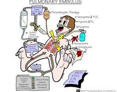 Nursing School: Medical Surgical Nursing Mnemonics - Pulmonary Embolus - I like to learn! Rn Nurse, Nurse Life, Nurse Stuff, Med Surg Nursing, Ob Nursing, Nursing Degree, Study Nursing, Nursing Career, Funny Nursing