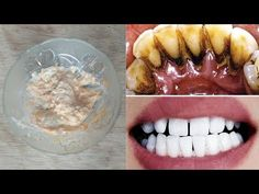 Tartarul a dispărut în 3 minute, Cum să scapi de tartru rapid și natural acasă - YouTube Teeth Health, Sushi, Health Tips, Health Fitness, Skin Care, Make It Yourself, Ethnic Recipes, Rid, Youtube