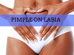 Vaginal Pimples: Causes, Treatment Options and Prevention Methods Ingrown Hair Cyst, Treat Ingrown Hair, Ingrown Hair Remedies, Home Remedies For Pimples, How To Treat Blisters, How To Treat Pimples, What Causes Pimples, How To Get Rid Of Pimples, Massage Therapy