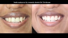 Smile makeover by expert cosmetic dentist Dr Trivikram in Bangalore.Gone are the days when you had to settle for chipped, stained and crooked teeth or bad ugly filling and crowns.Because no amount of make-up can mask a bad smile. Today, many people benefit from modern Cosmetic Dentistry. Read more http://www.allsmilesdc.org/cosmetic-dentistry/ .