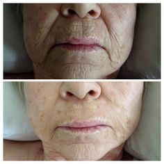 Instantly Ageless, more amazing results from one of our customers!
