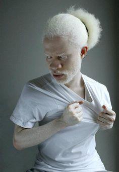 Albino Men, Modelo Albino, Pretty People, Beautiful People, Human Poses, Unique Faces, Portraits, People Of The World, Interesting Faces